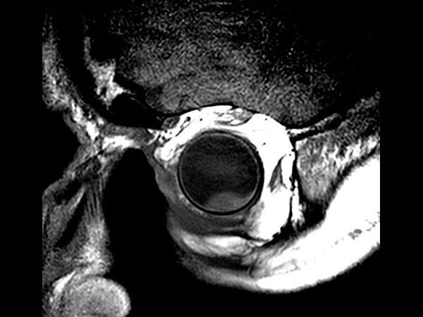 2D T1w TSE - Oblique coronal