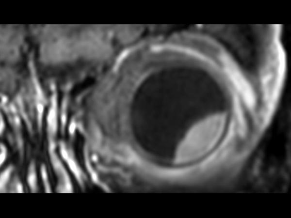 3D T1w TSE FatSat post gado - Coronal reformat