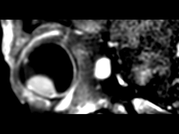 3D T1w TSE FatSat post gado - Sagital reformat