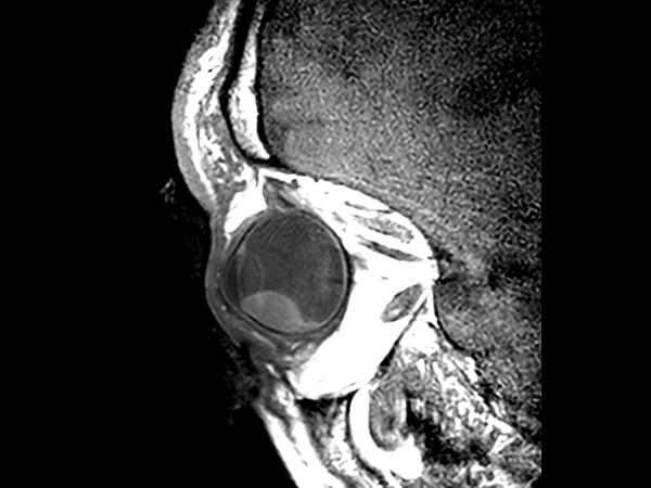 2D T1w TSE - Oblique sagittal