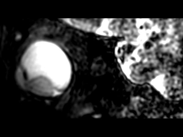 3D T2w TSE - Sagital reformat
