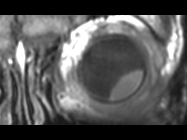 3D T1w TSE - Coronal reformat