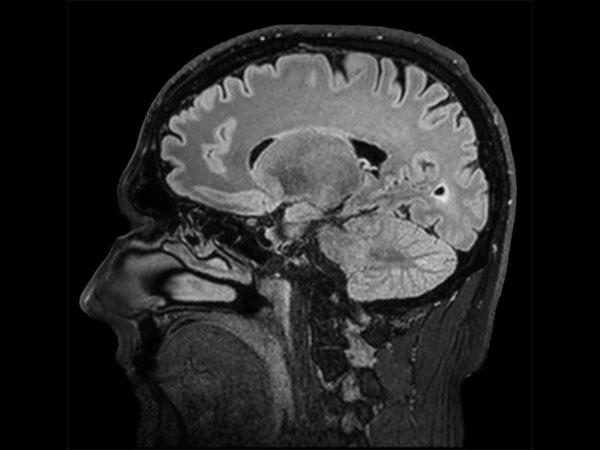 Sagittal BrainVIEW FLAIR SENSE = 9