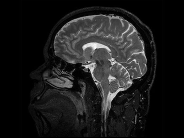 Sagittal BrainVIEW T2w SENSE = 9
