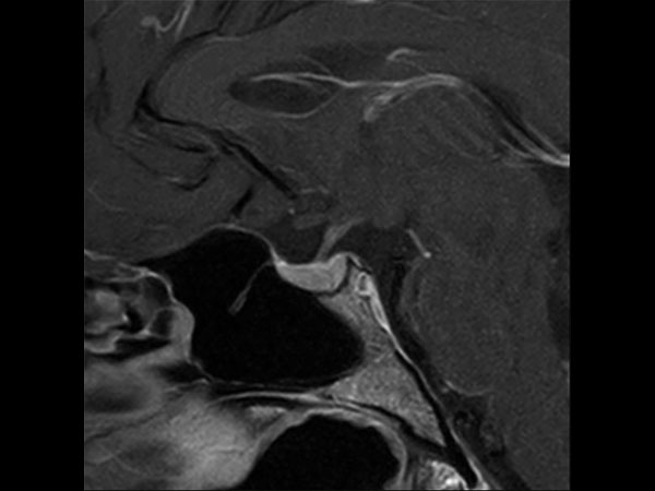 Sagittal T1w TSE (+gado)