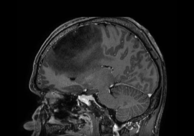 3D T1w TFE - Post-gado (sagittal reformat)