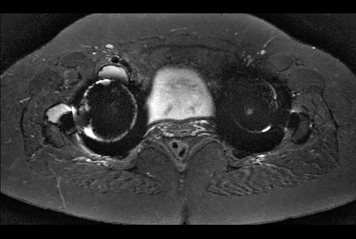 Hip imaging with metal implant using MARS at 3.0T