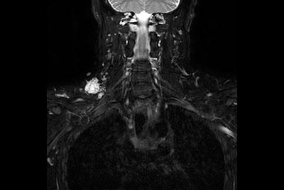 Brachial Plexus with a hemangioma