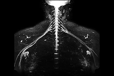 Non-invasive nerve plexus imaging