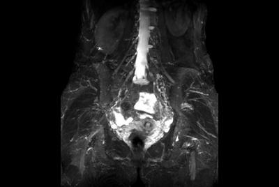 Lumbar Plexus imaging