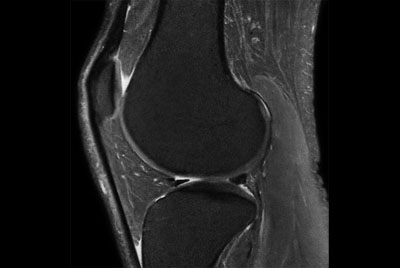Knee Imaging with Cartilage Assessment