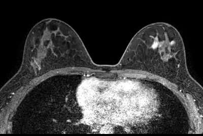 Breast imaging with Compressed SENSE