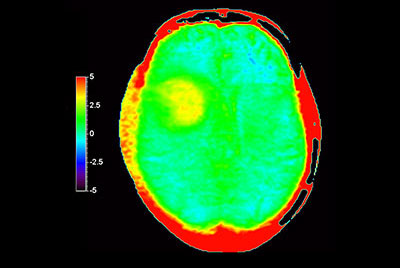 Brain with glioblastoma, incl. 3D APT