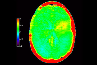 Brain lesion with 3D APT