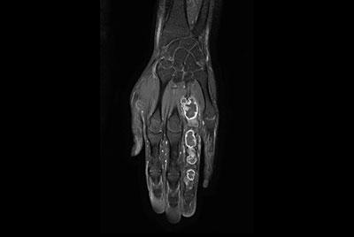 Hand/Wrist with tumor