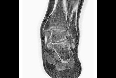 Ankle/Foot imaging post amputation