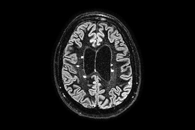 Shorter brain exam time due to 2D and 3D Compressed SENSE imaging
