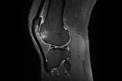 High quality Knee imaging in short scan times