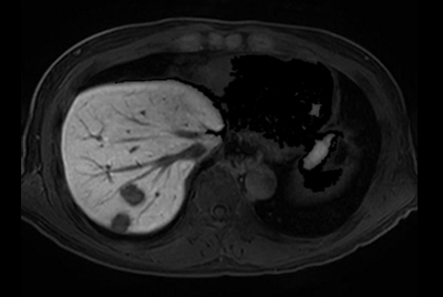 Liver metastasis – Free breathing