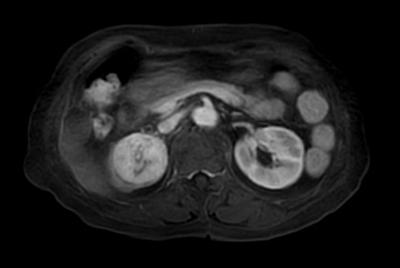 Kidney imaging – Free breathing