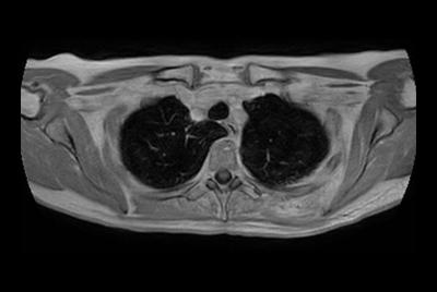 Thorax soft tissue lesion – Free breathing