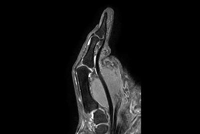 Thumb imaging