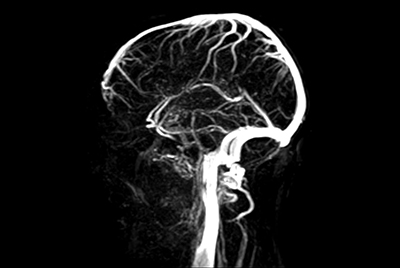 Dynamic contrast-enhanced MR Angiography