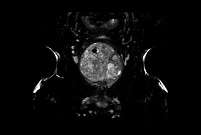 Multi-phase, contrast-enhanced prostate imaging