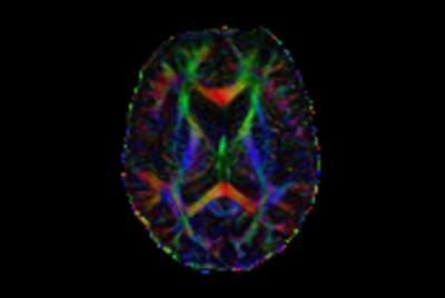 Comprehensive Brain with MultiBand SENSE DTI
