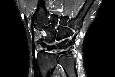 Wrist off-center imaging
