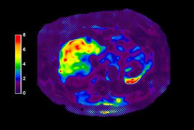 Liver quantification