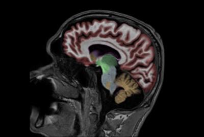 NeuroQuant