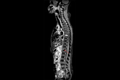 Premium Fat-free Pediatric Spine imaging
