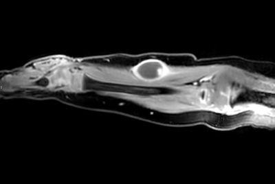 Pediatric forearm with lesion