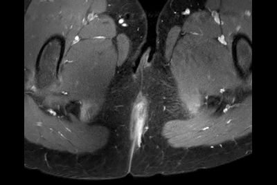 Pediatric pelvis with fistula