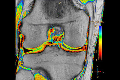 Comprehensive 3D knee imaging with MSK VIEW