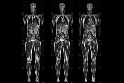 Total Body Imaging
