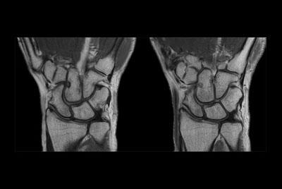 Wrist imaging