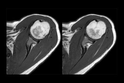 Shoulder imaging with dS Flex coil