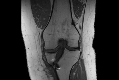 Metal Imaging of the Knee