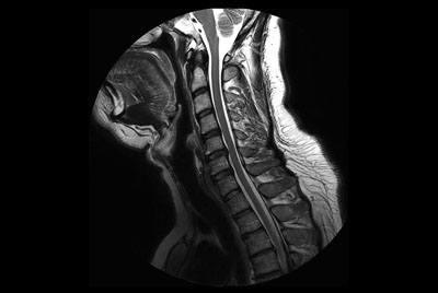 Comprehensive Cervical Spine imaging at 3.0T