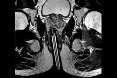 Prostate Biopsy