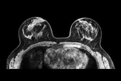 Breast imaging using SmartExam