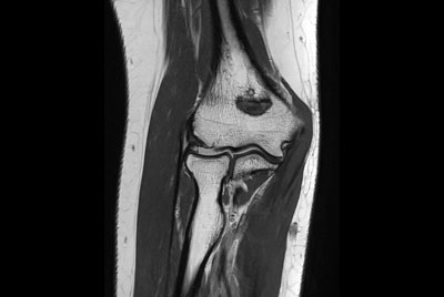 Elbow Imaging
