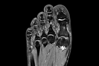 Foot and Ankle imaging