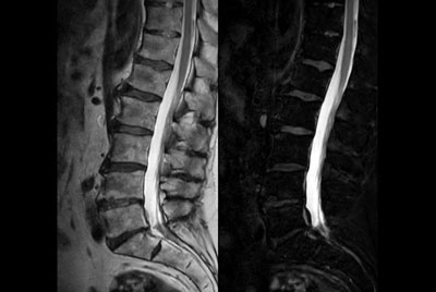 Comprehensive Lumbar Spine imaging at 3.0T