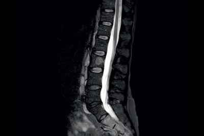 Comprehensive Lumbar Spine imaging at 1.5T